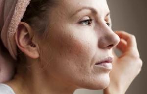 Какого ухода требует кожа лица на каждом возрастном этапе?