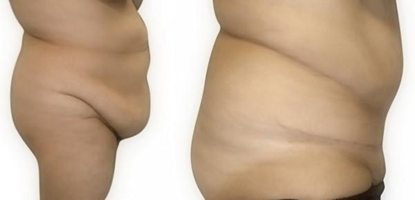 Не всегда после липосакции можно полностью избавиться от лишнего жира