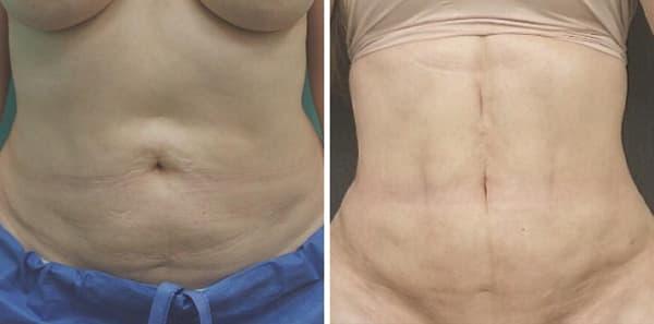 Фото до и после вакуумной липосакции живота